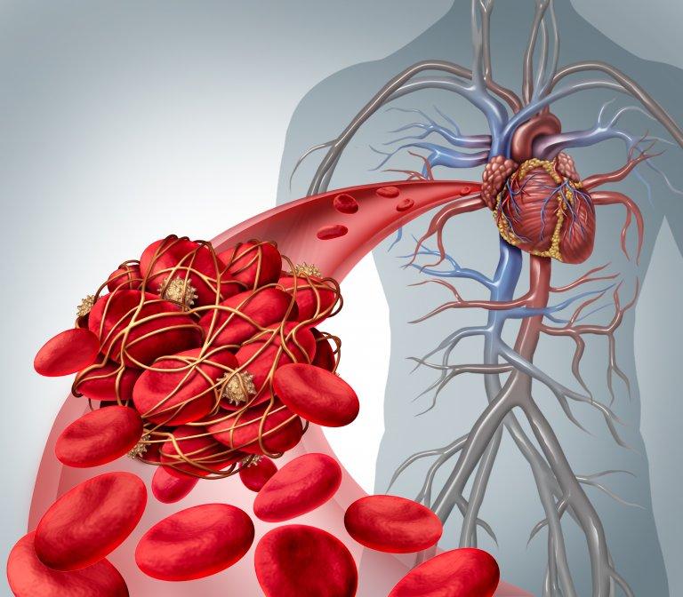 Nattokináza – prírodný fibrinolytický enzým